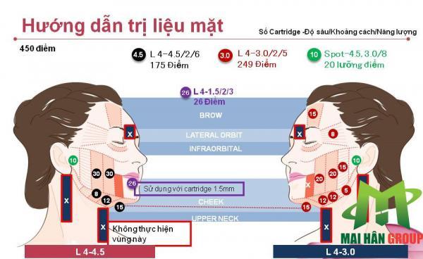 Hướng dẫn trị liệu cho vùng mặt
