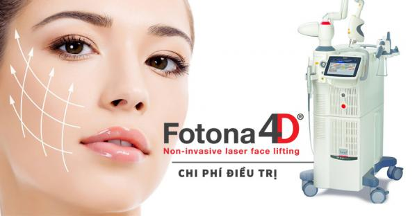 Trẻ hoá với FOTONA 4D, Công nghệ nâng cơ không xâm lấn mới nhất hiện nay