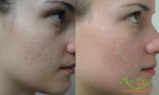 Điều trị sẹo lõm bằng Fractinal Co2 Laser
