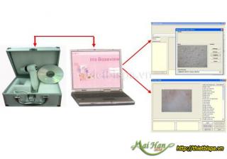 Máy kiểm tra da và tóc kết nối vi tính 6100U