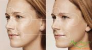 Công nghệ RF xóa nhăn vùng mắt